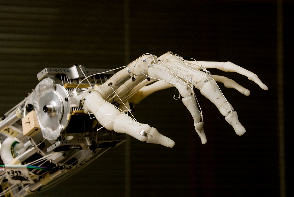 3D gedruckte prothetische Hand entwickelt von der University of Washington